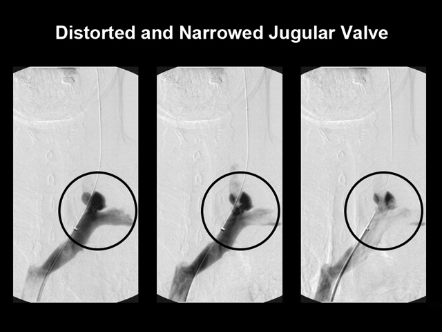 distorted-jugular-valve