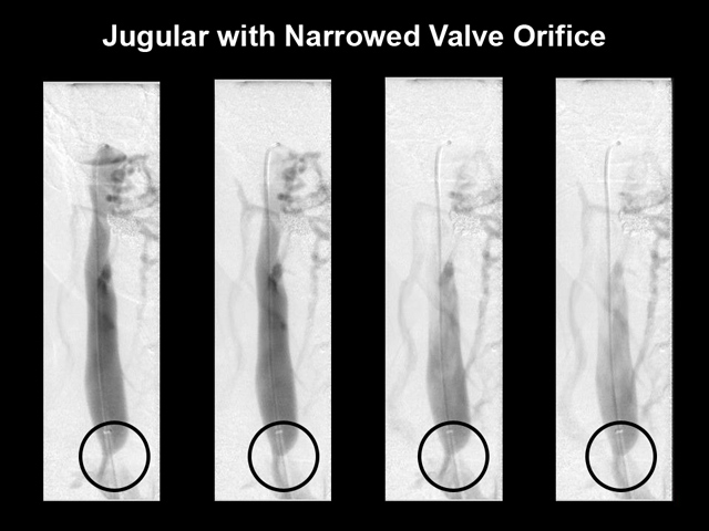 narrowed-valve-orifice
